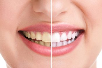 Teeth Whitening - Dental Discount Plan